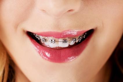 Schallzahnbürste mit Zahnspange Brackets