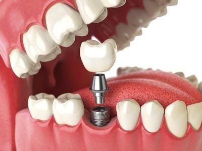Schallzahnbürste bei Implantaten
