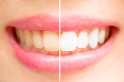 Schallzahnbürste weißere Zähne gesund mit dem Schallzahnbürsten Test